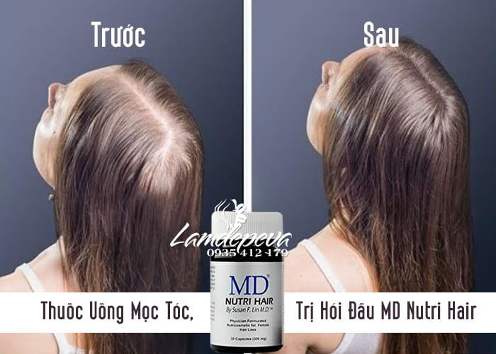 Thuốc Uống Mọc Tóc, Trị Hói Đầu MD Nutri Hair Của Mỹ - 30 Viên 1