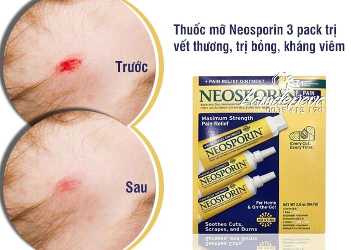 Thuốc mỡ Neosporin 3 pack chống nhiễm trùng, trị vết thương 1