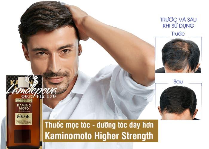 Tinh dầu mọc tóc Kaminomoto Higher Strength 200ml Nhật 1