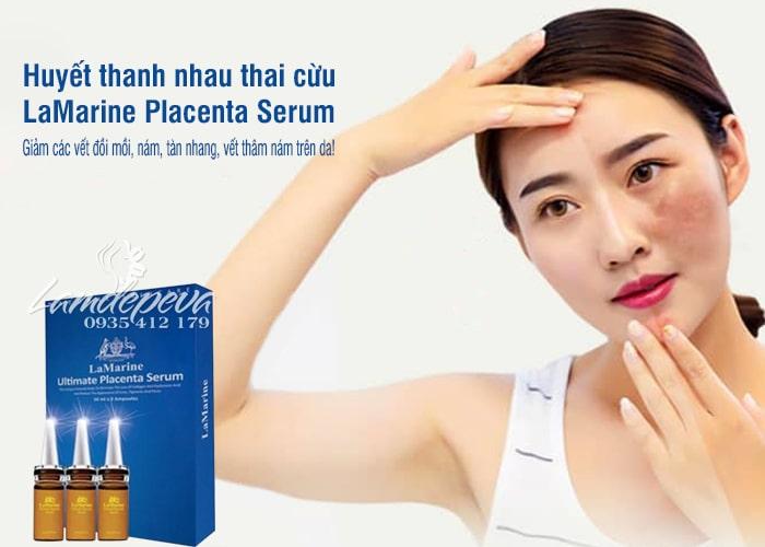 huyet-thanh-nhau-thai-cuu-lamarine-placenta-serum-10ml-x3-cua-uc-1.jpg