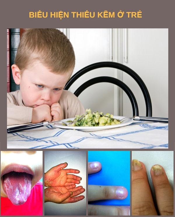 Dấu hiệu thiếu kẽm ở trẻ