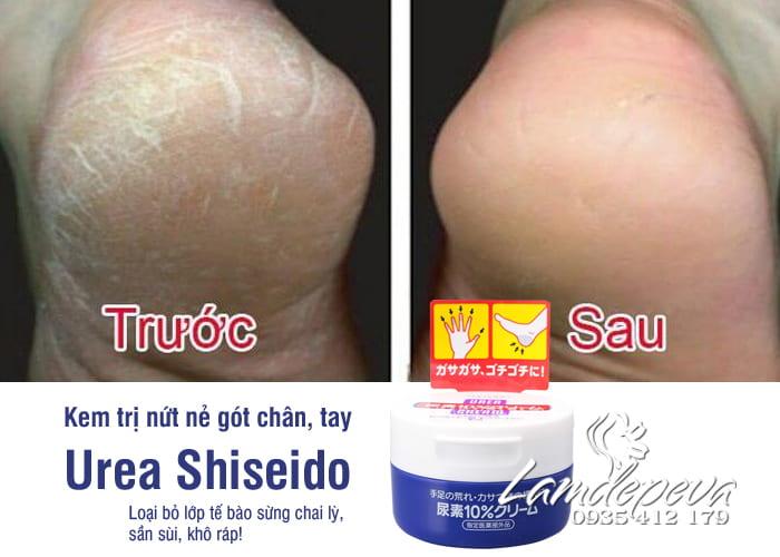 kem-tri-nut-ne-chan-tay-urea-shiseido-100g-chinh-hang-nhat-2-min.jpg
