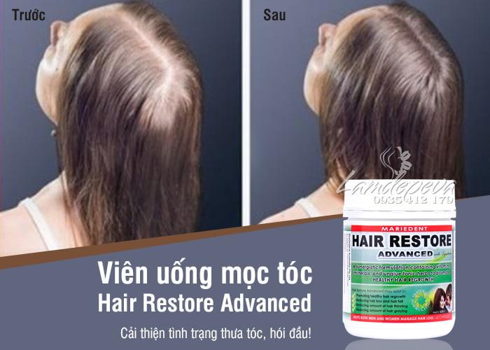 vien-uong-kich-thich-moc-toc-hair-restore-advanced-cua-uc-3-min.jpg