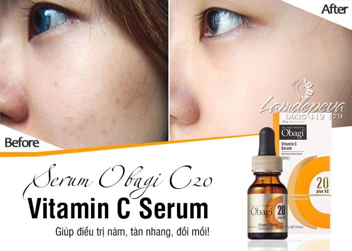 Serum Obagi C20 Vitamin C Serum Nhật Bản 15ml trị nám 1