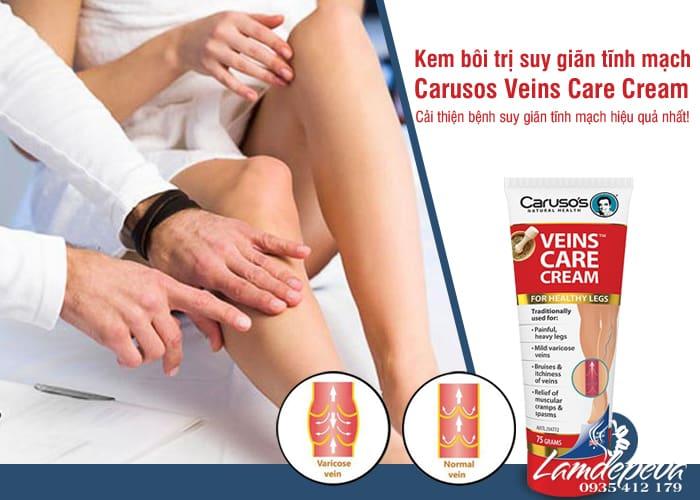kem-ho-tro-suy-gian-tinh-mach-carusos-veins-care-cream-uc-1.jpg